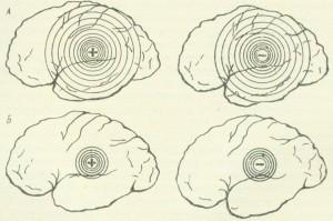 Иррадиация нервных процессов