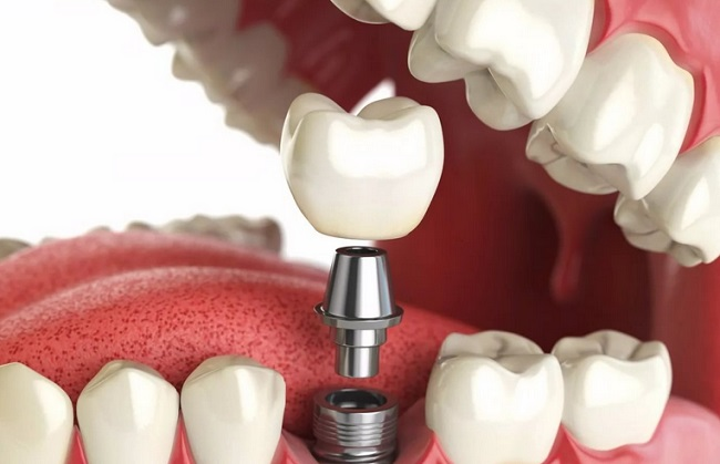 замена зуба